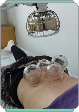 What Is Moxa And Cupping Therapy