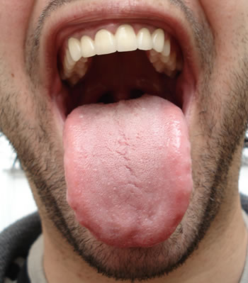 Tongue Thrush Treatment Before Pictures